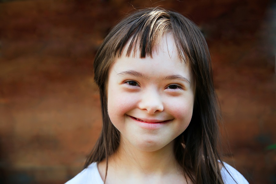 INFANCIA – Los niños con Síndrome de Down necesitan estimulación.